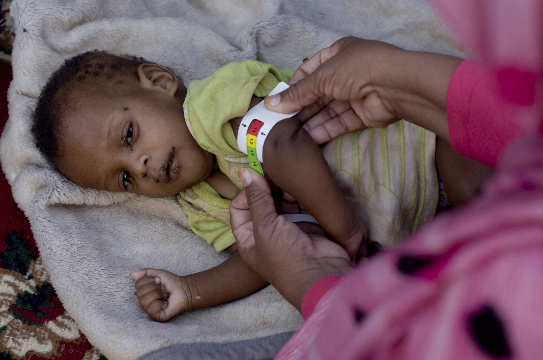 Una nutricionista controla la salud de un niño. El color rojo indica desnutrición grave. Crédito: Kristin Palitza/IPS