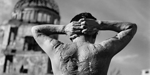El dolor humano de las armas nucleares lo ejemplifica esta víctima de la bomba atómica de Hiroshima. Crédito: Campaña Internacional para Abolir las Armas Nucleares