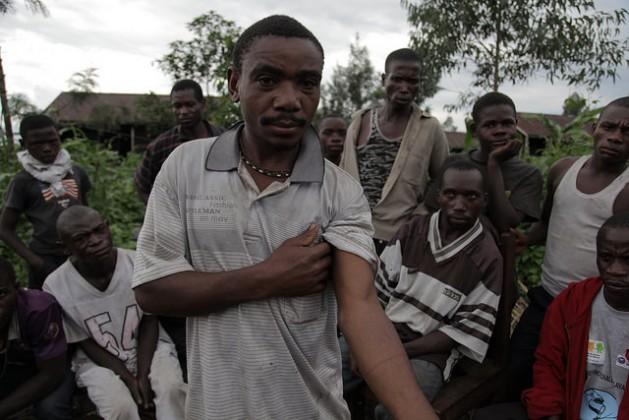 Un hombre muestra dónde fue herido por un guardaparques del Parque Nacional de Virunga, en RDC. Crédito: Zahra Moloo / IPS