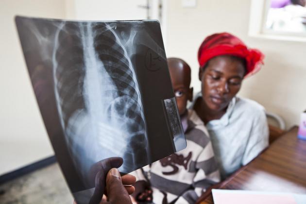 La tuberculosis permanece como la enfermedad infecciosa más letal en el mundo y en 2015 mató más de 1,8 millones de personas. Crédito: MSF