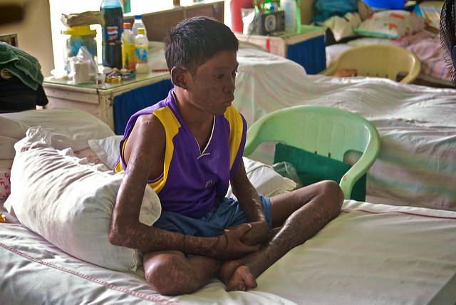 Filipinas tiene la mayor incidencia de lepra en la región. Se identificaron unos 1.700 en cada uno de los últimos tres años. Crédito: moyerphotos/CC by 2.0.