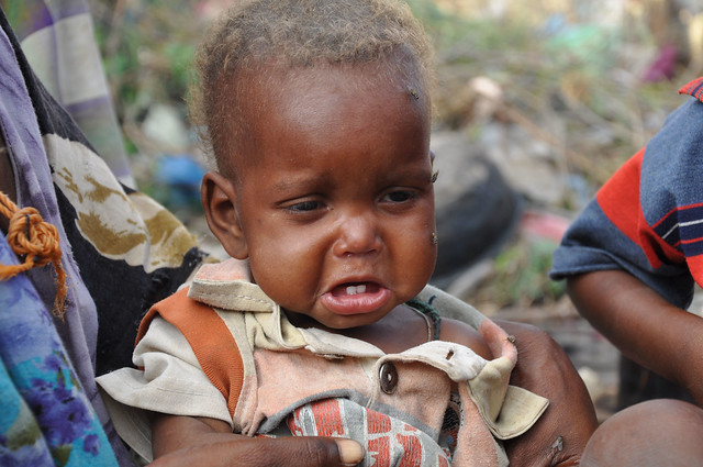 Somalia ha sufrido esta década graves sequías que han forzado a millones de sus habitantes a abandonar sus hogares y buscar refugio en campamentos de ayuda muchas veces muy lejanos, situados en los alrededores de la capital, Mogadiscio, y otras ciudades del país. Crédito: Abdurrahman Warsameh / IPS