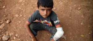 Un niño herido descansa en junio de este año en el suelo de un campamento improvisado en la aldea de Aqrabat, a 45 kilómetros al norte de la ciudad de Idlib, cerca de la frontera de Siria con Turquía. Crédito: Unicef